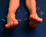 acupuncture, needles in feet,